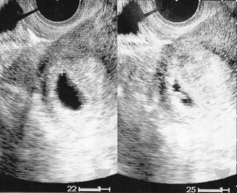 六 週 目 妊娠