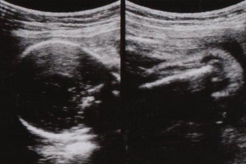 妊娠26週 エコー写真