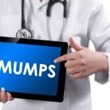 医者 ムンプス おたふく風邪