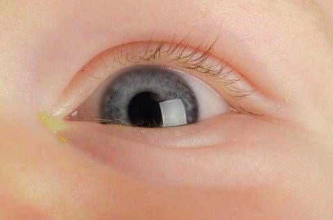 赤ちゃん 子供 目 目やに 病気 病原菌 ウイルス