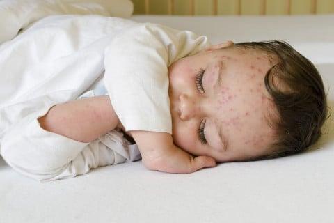 湿疹 発疹