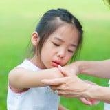 子供 かゆみ 皮膚 炎症 肌荒れ