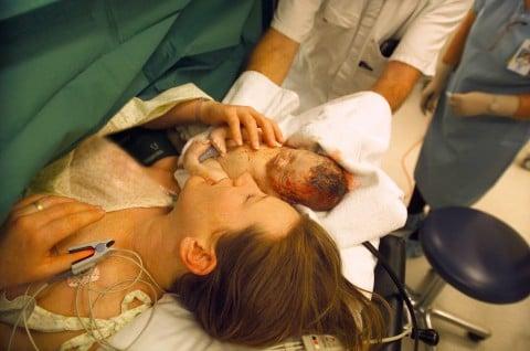 帝王切開 新生児 出産 分娩 手術台 病院