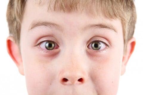 子供 目 赤い 充血