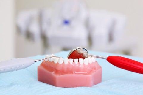 歯茎 歯 歯科 歯医者