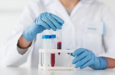 採血 血液検査