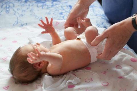 赤ちゃん 新生児 おむつ でべそ