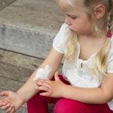 子供 湿疹 かゆみ かゆい クリーム 薬