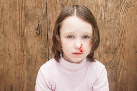 子供 鼻血
