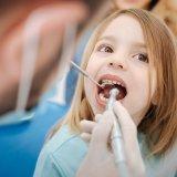 子供 歯 治療 歯医者