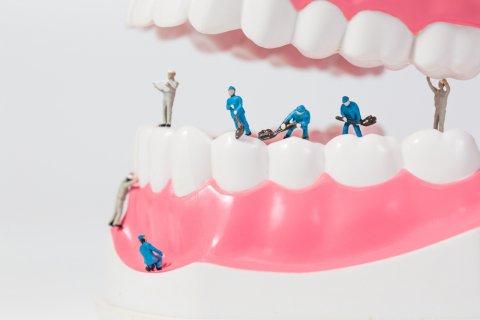 歯 矯正 工事 口