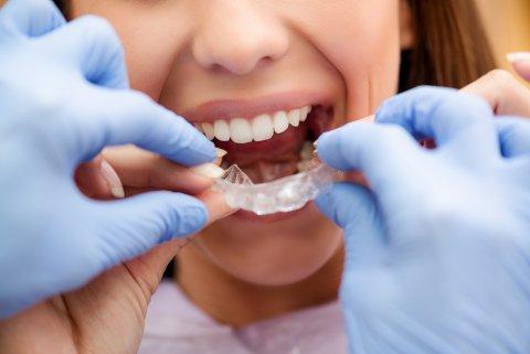 歯 矯正 口