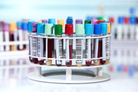 検査 血液 染色体 出生前診断