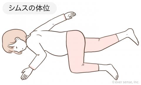 シムスの体位