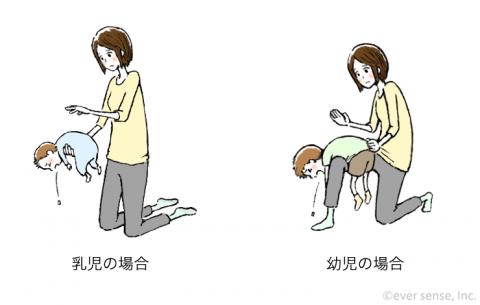 誤飲 誤嚥 イラスト 背部叩打法