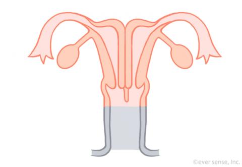 子宮奇形 重複子宮 双頸双角子宮