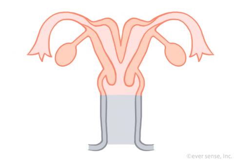 子宮奇形 双角子宮