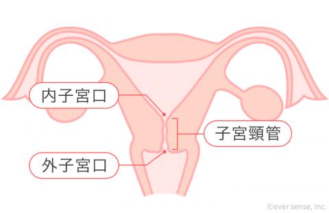 子宮「頸」管 子宮頸管 子宮頚管