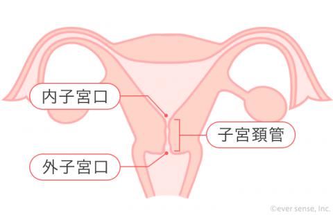 子宮「頚」管 子宮頚管 子宮頸管