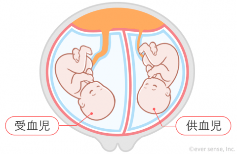 双子 多胎妊娠 双胎間輸血症候群