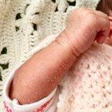 新生児落屑 肌 カサカサ 乾燥 新生児 牧野家