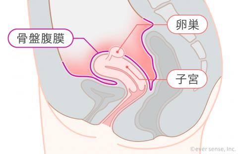 骨盤腹膜炎