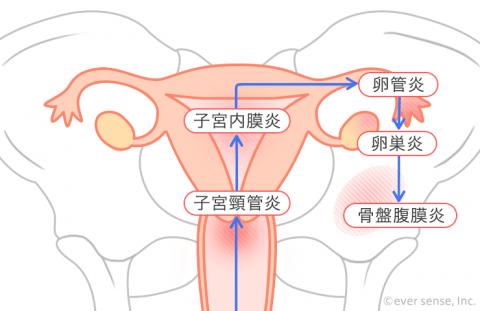 子宮頸管炎 子宮内膜炎 卵管炎 卵巣炎 骨盤腹膜炎