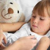 女の子 熱 発疹