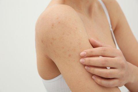女性 発疹 かゆい