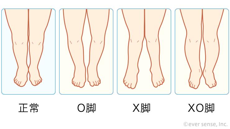 原因 x 脚