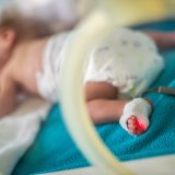 極低出生体重児童 未熟児