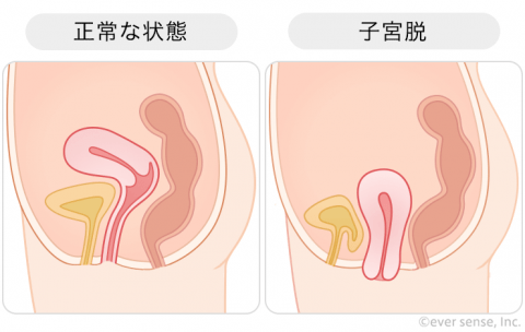 子宮脱 子宮下垂