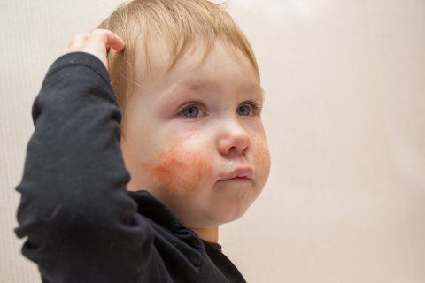 りんご病とはどんな病気? 子供 頬 発疹