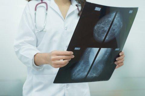 画像診断 マンモグラフィ 検査 乳がん 医師