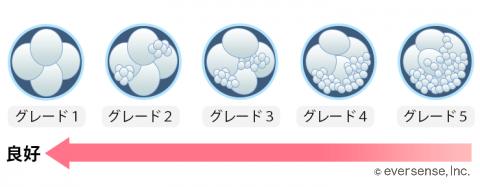 胚盤胞のグレード