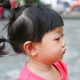 目 ものもらい 病気 日本人 子供