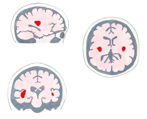 miku転載 イラスト4 子どもを伸ばす「脳育て」